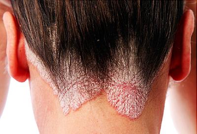 łuszczyca skóry - przykład