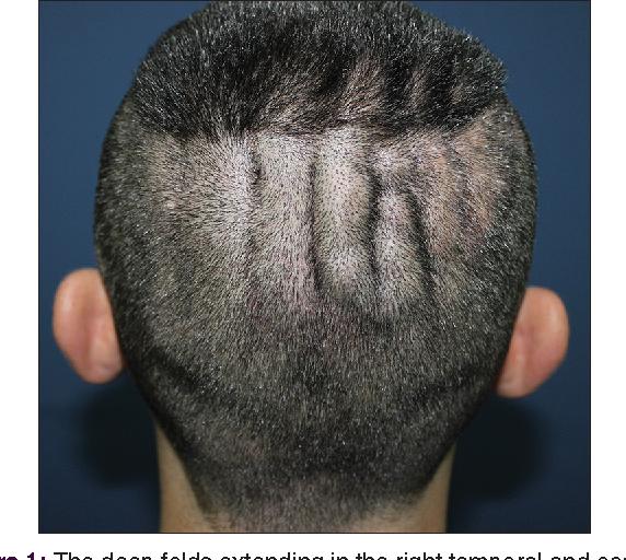 Fałdy widoczne po ścięciu włosów.  Źródło: