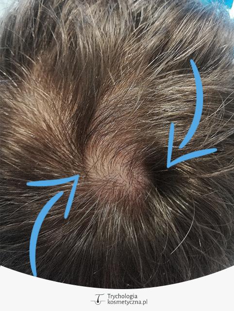 Fałd skórny zakryty włosami - źródło własne