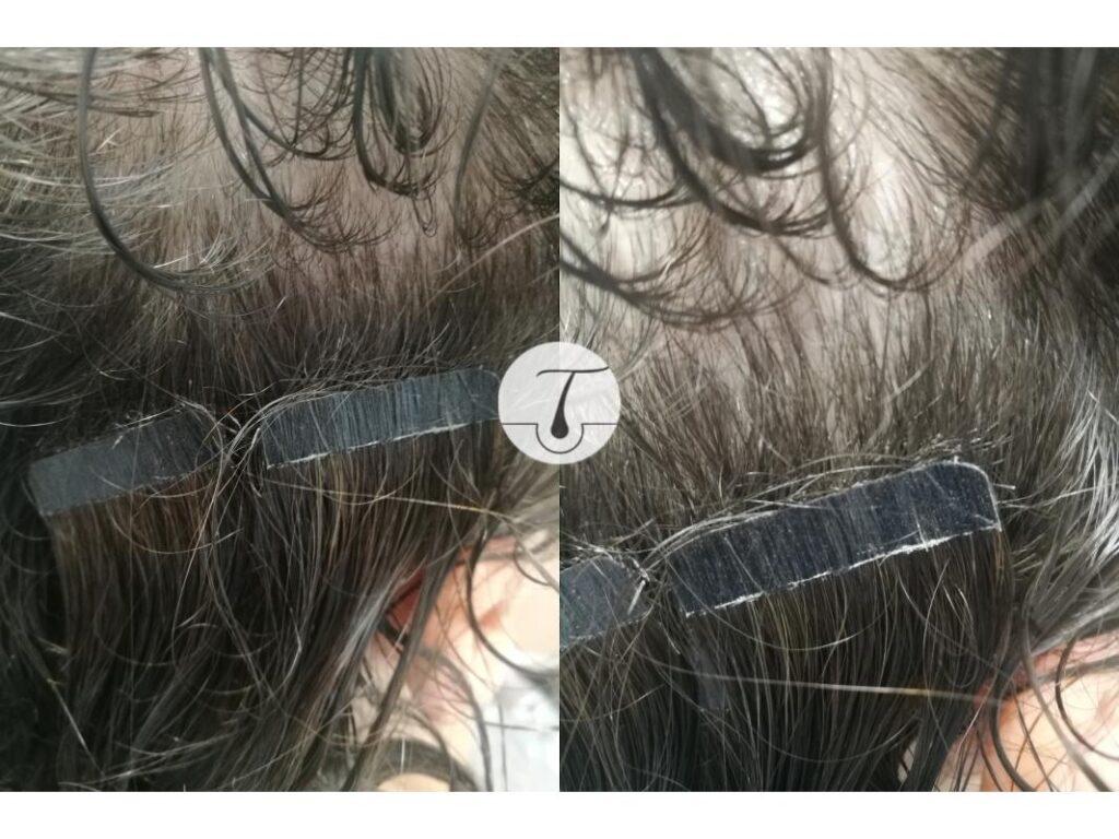 Włosy wyrwane podczas noszenia taśm na klej (metoda kanapkowa)